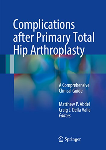 Complications after Primary Total Hip Arthroplasty: A Comprehensive Clinical Guide (English Edition)